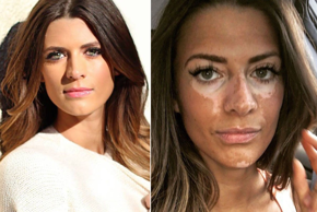 'I Hid My Vitiligo While I Was On The Bachelor'